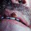3. Кератоакантома губы фото