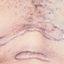 5. Келоидные рубцы фото