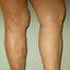 11. Варикоз при беременности на ногах фото