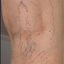 6. Варикоз при беременности на ногах фото