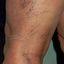 7. Варикоз при беременности на ногах фото