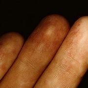 Начальная стадия экземы на пальцах рук