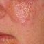 1. Начальная стадия экземы на лице фото