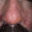 11. Начальная стадия экземы на лице фото