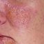 2. Начальная стадия экземы на лице фото