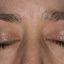 20. Начальная стадия экземы на лице фото