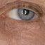 21. Начальная стадия экземы на лице фото
