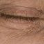 22. Начальная стадия экземы на лице фото