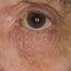 23. Начальная стадия экземы на лице фото