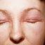 26. Начальная стадия экземы на лице фото