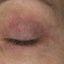 28. Начальная стадия экземы на лице фото