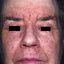 3. Начальная стадия экземы на лице фото