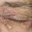 30. Начальная стадия экземы на лице фото