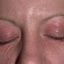 33. Начальная стадия экземы на лице фото