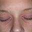 34. Начальная стадия экземы на лице фото