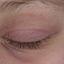 35. Начальная стадия экземы на лице фото