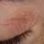 4. Начальная стадия экземы на лице фото