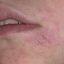 6. Начальная стадия экземы на лице фото