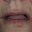 8. Начальная стадия экземы на лице фото