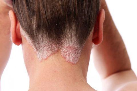 экзема фото волосистой части головы