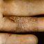 17. Микробная экзема на руках фото