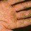 3. Микробная экзема на руках фото