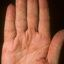 6. Микробная экзема на руках фото