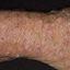 27. Старческая почесуха фото
