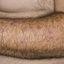 44. Старческая почесуха фото