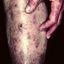 48. Старческая почесуха фото