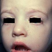Контагиозный моллюск у детей на лице
