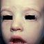 1. Контагиозный моллюск у детей на лице фото