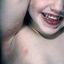 3. Контагиозный моллюск у детей на лице фото