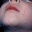 8. Контагиозный моллюск у детей на лице фото