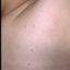 11. Контагиозный моллюск начальная стадия фото