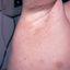 4. Контагиозный моллюск начальная стадия фото