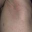 82. Контагиозный моллюск начальная стадия фото