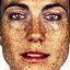 17. Веснушки на лице фото