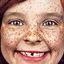 36. Веснушки на лице фото