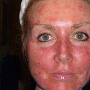 Солнечный ожог на лице