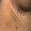 19. Нейрофиброматоз Реклингхаузена фото