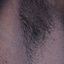 20. Нейрофиброматоз Реклингхаузена фото