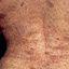 30. Нейрофиброматоз Реклингхаузена фото