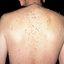 48. Нейрофиброматоз Реклингхаузена фото