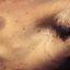 57. Нейрофиброматоз Реклингхаузена фото