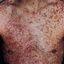 61. Нейрофиброматоз Реклингхаузена фото