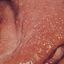 65. Нейрофиброматоз Реклингхаузена фото