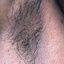 70. Нейрофиброматоз Реклингхаузена фото