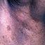 71. Нейрофиброматоз Реклингхаузена фото