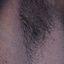 23. Взрослые с нейрофиброматозом фото